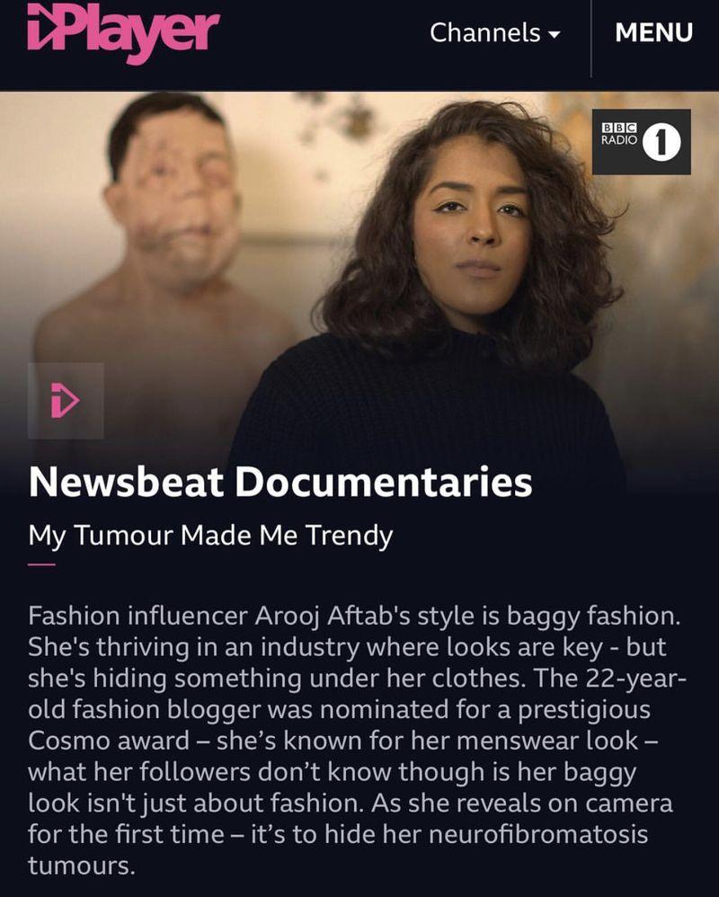 BBC Newsbeat Documentary - My Tumour Made Me Trendy