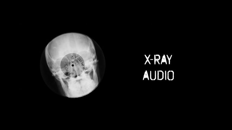 x-Ray Audio