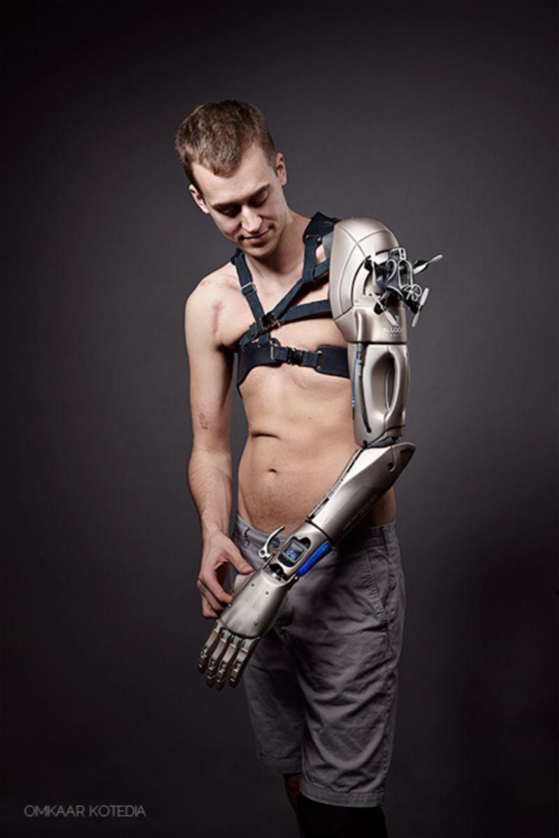Open Bionics Meets Metal Gear Solid