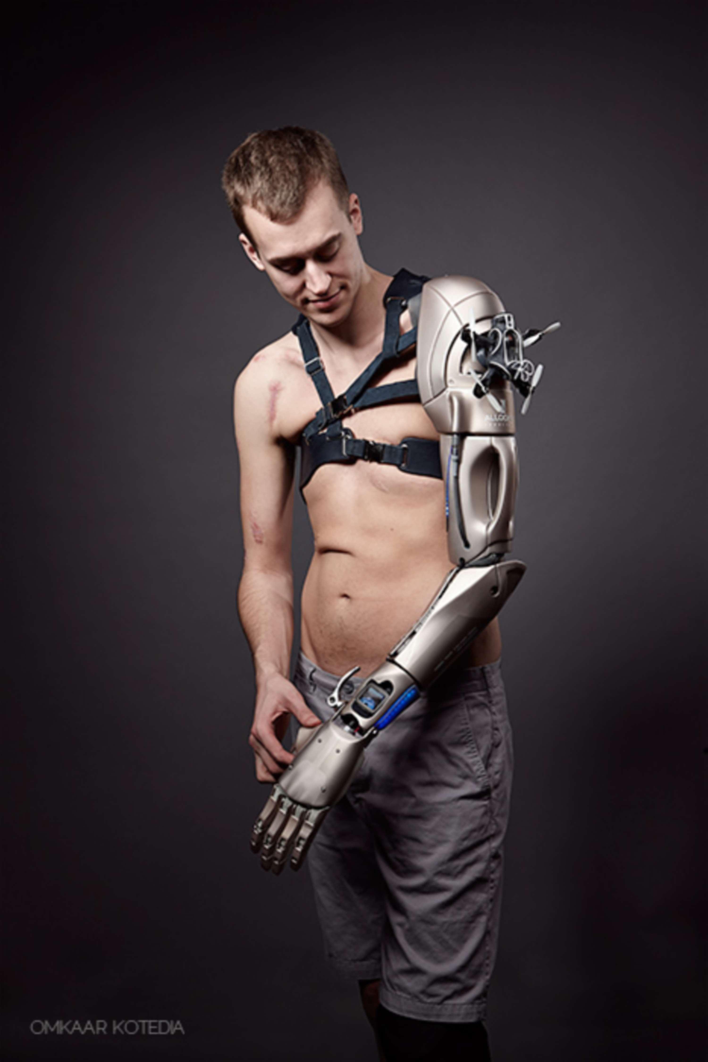 Open Bionics Meets Metal Gear Solid   The Dots