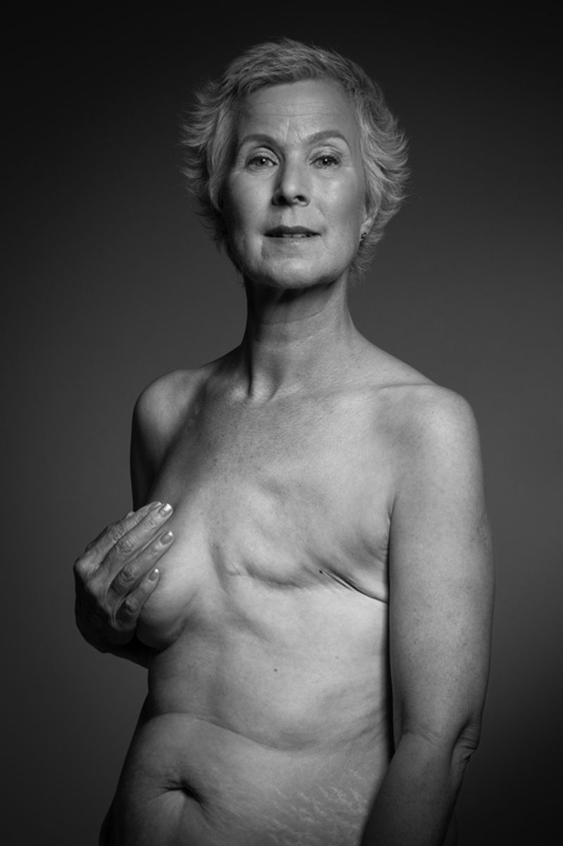 Breast Cancer Care - Body Confidence